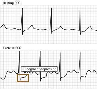 "Two ECG tracings, one for a heart at rest one for a heart working. A segment of the working ECG tracing shows ST segment depression suggesting ""ischemia"" or lack of oxygen getting to the heart."