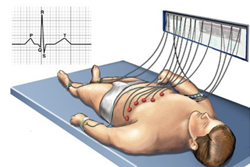 Diagram of man lying on table with ECG leads attached to his chest. Tracing of   heart rhythm is beside the man.